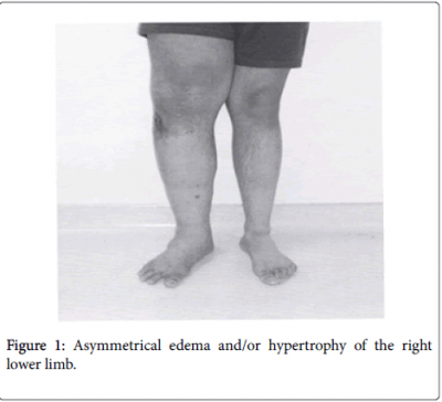 clinical-research-foot-ankle-Asymmetrical-edema-hypertrophy-4-191-g001.png