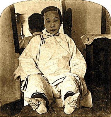 Foot-Bind-ca-1900.jpg